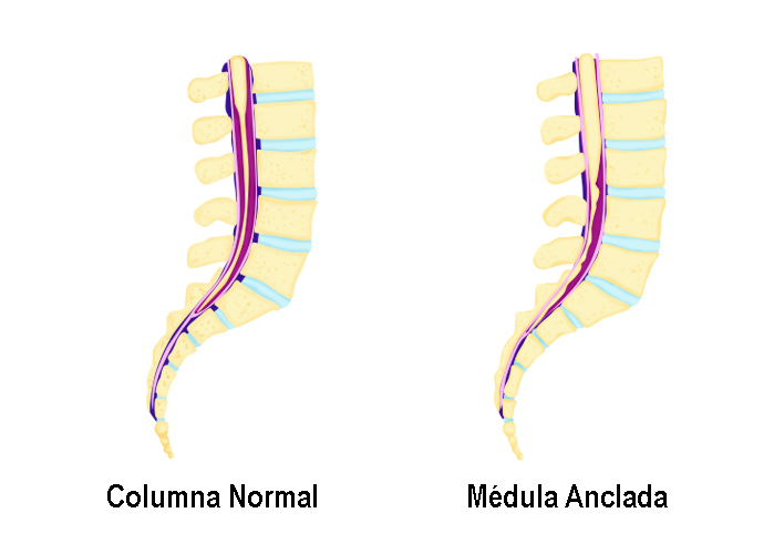 Medula anclada